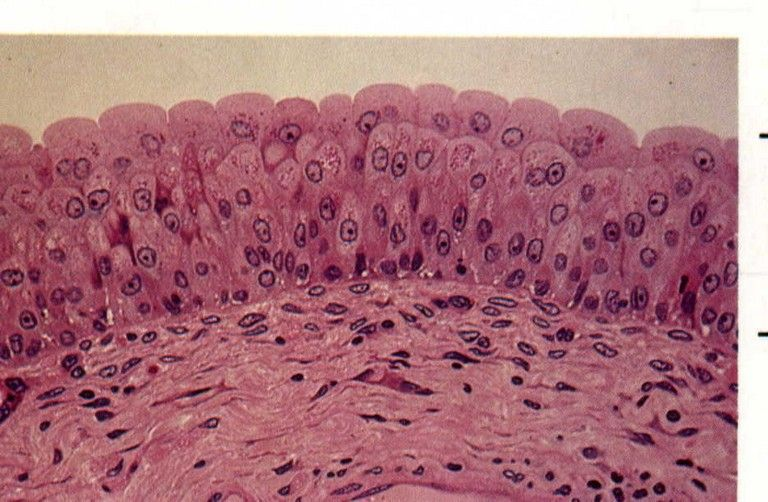 transitional epithelium. most important is the dome shaped cells, Sphenoid