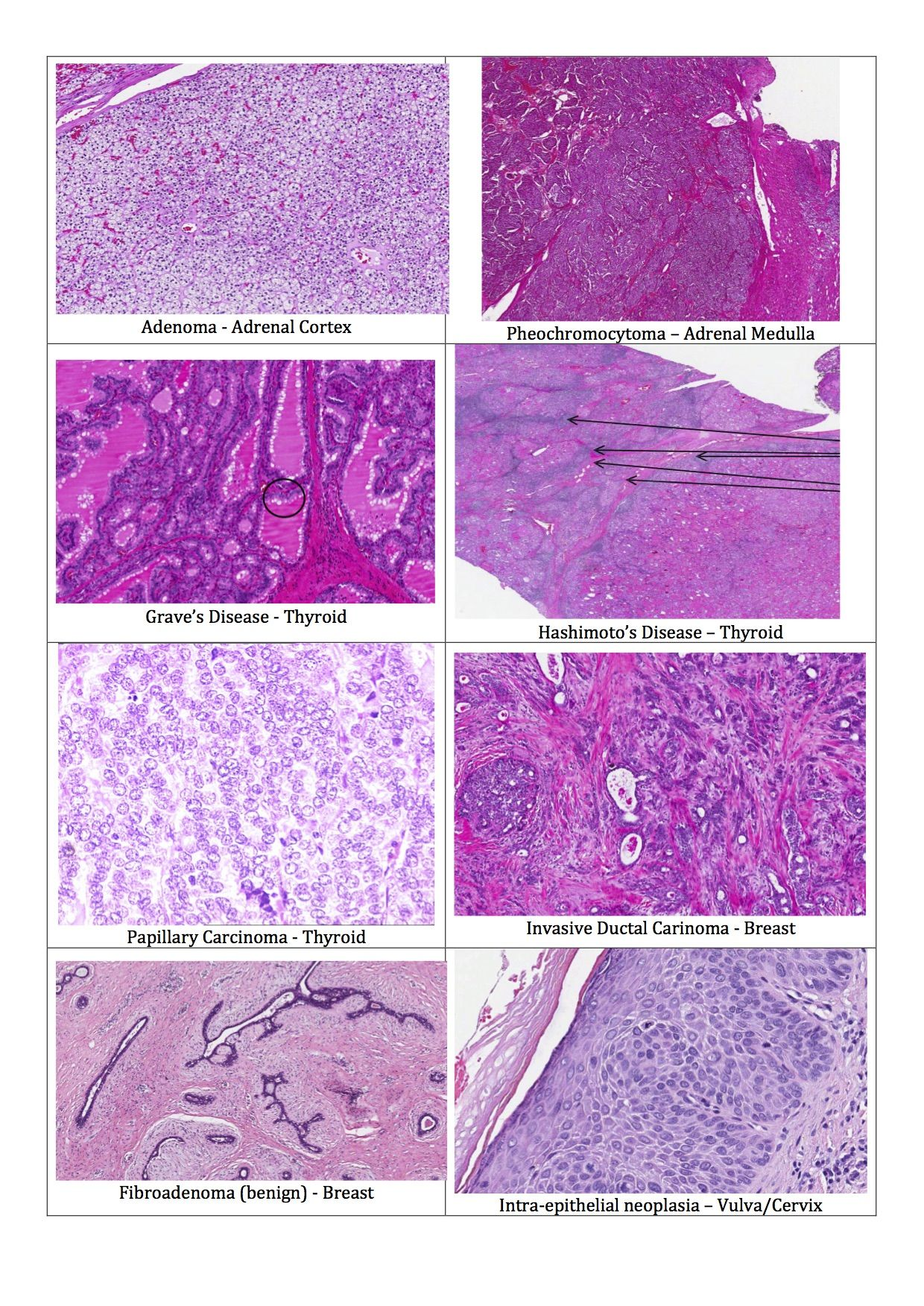 H&E stain Histopathology condition slides pg 2 Medical
