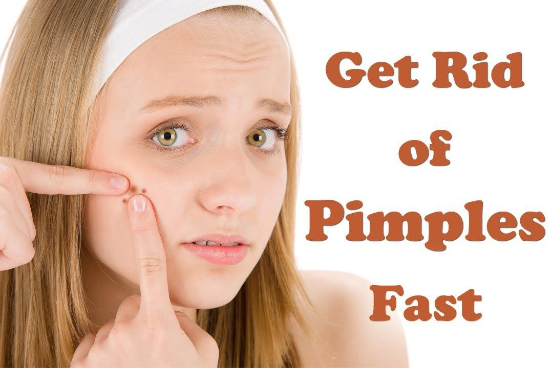 How To Get Rid Of Pimples Instantly How To Get Rid Of Pimples Fast Pimples Are A Common Skin Condition Especially During Puberty How To Get Rid Of Pimples How To Remove Pimples How To Treat Acne