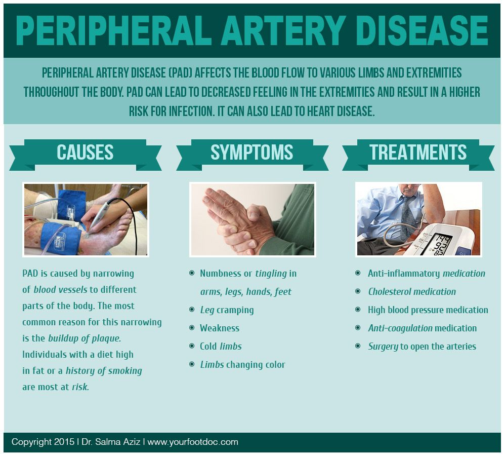 The 25+ Best Peripheral Artery Disease Ideas On Pinterest. Home Security Systems Lexington Ky. Corporate Liability Insurance Cost. East Colonial Self Storage Plunging A Toilet. Sharepoint Enterprise Search. Degree In Environmental Science. Dodge Challenger V6 Review Speco Mobile App. Products For Online Store Key Risk Management. Multiple Sclerosis Charities