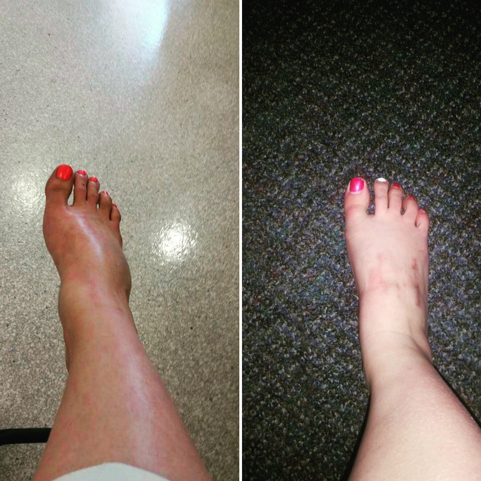 My Lisfranc Injury And The Road To Recovery Lisfranc Injury Foot Injury Injury Recovery
