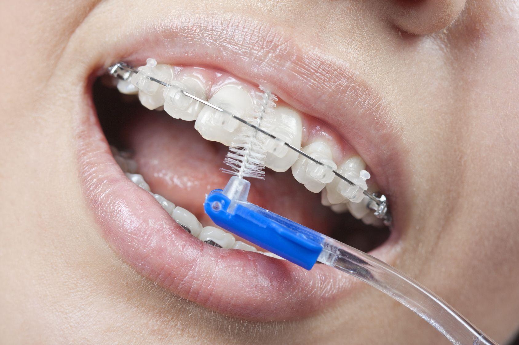 Top 4 tips for Dental Braces Care Brush carefully on
