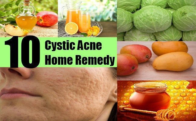 butt-sex-remedies-for-facial-cysts