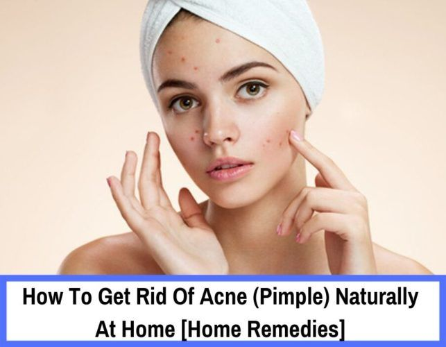 20+ Natural Proven Way To Get Rid Of Acne Overnight In