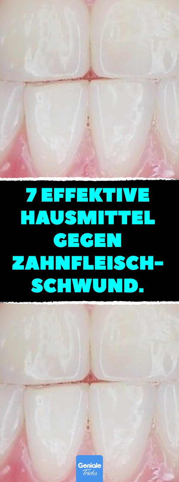 7 effektive hausmittel gegen zahnfleischschwund 7 hausmittel f r die gesundheit der z hne und. Black Bedroom Furniture Sets. Home Design Ideas