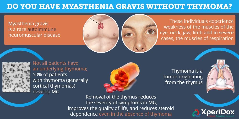 Do You Have Myasthenia Gravis Without Thymoma? Thymectomy ...