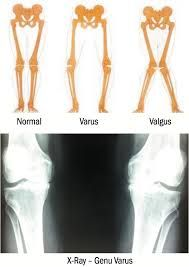 Image result for knee replacement