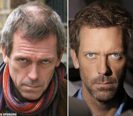Hugh Laurie Hair Transplant Hair Transplant Hair And Beard Styles Before After Hair