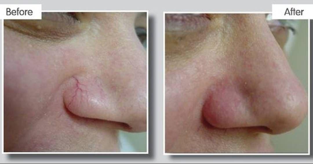 how to fix broken capillaries on nose