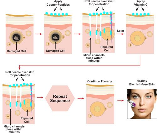 Microneedling Skin Rejuvenation process | anti aging face and mask