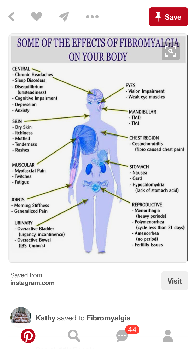fibromyalgia body diagram wiring diagrams bib fibro body diagram thyroid info fibromyalgia fibromyalgia flare fibromyalgia [ 750 x 1334 Pixel ]
