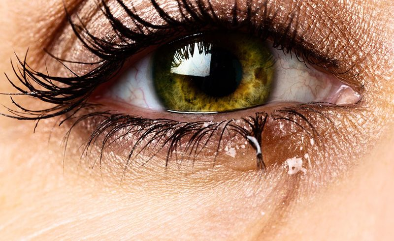 How To Stop My Eyes From Tearing And Burning When Wearing Makeup Watery Eyes Watery Eyes Remedy Dry Eyes