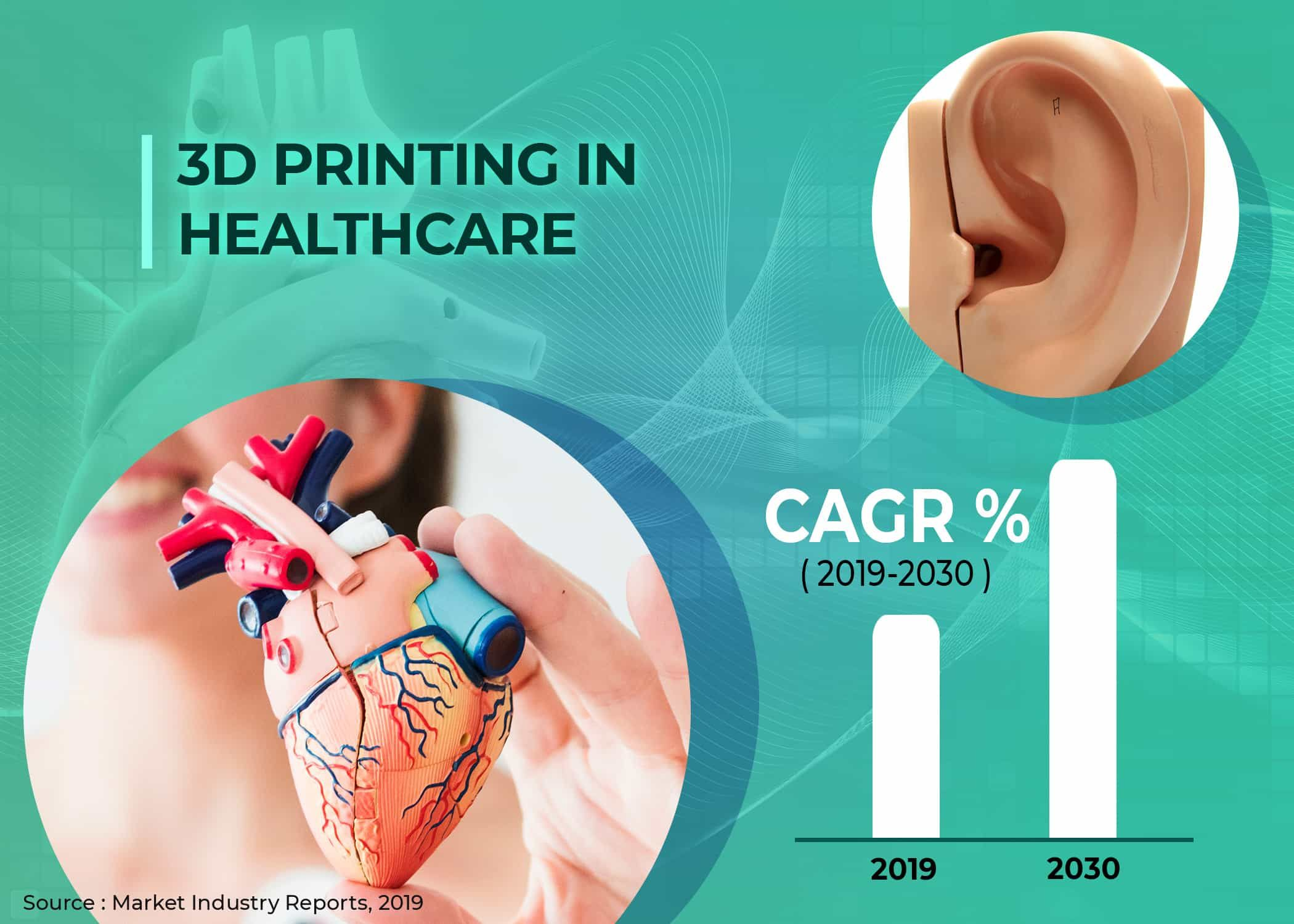 3D Printing in Healthcare Market by Process/Technology