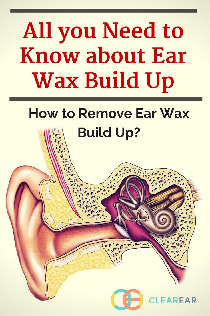 All you need to know about ear wax build up clear ear