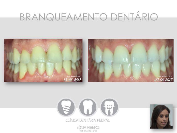Branqueamento Dentario Efetuado Em Casa Goteiras Individuais