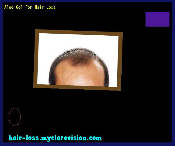 Aloe Gel For Hair Loss 110027 Cure
