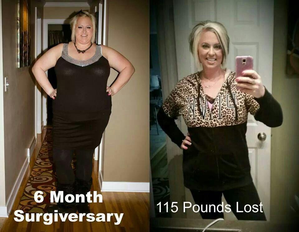 Pin on Weight loss surgery stuff. VSG