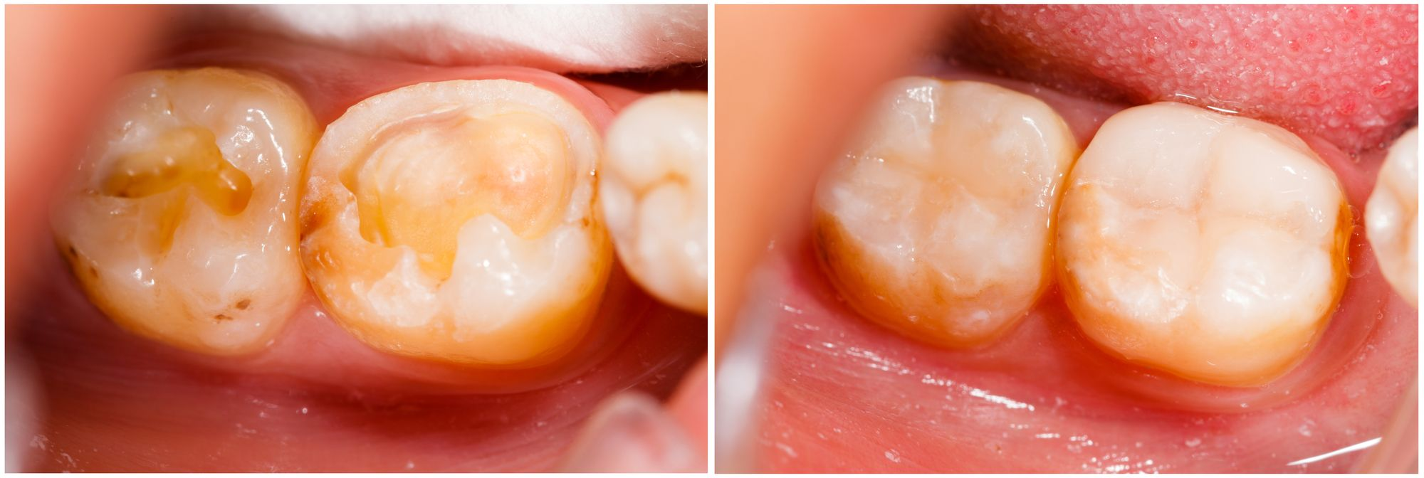 Tooth Colored Fillings What S The Big Deal Dental Fillings Tooth Colored Fillings Tooth Filling