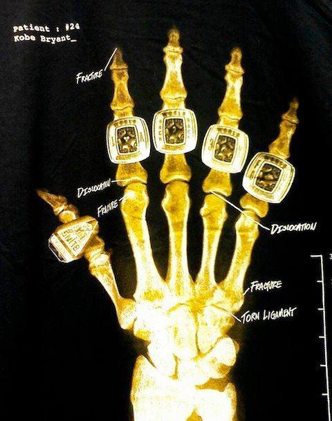 9909d0b32 Kobe hand xray. 5 Rings!!!