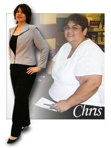 Among The Reasons You Should Get Bariatric Surgery In San Antonio Is