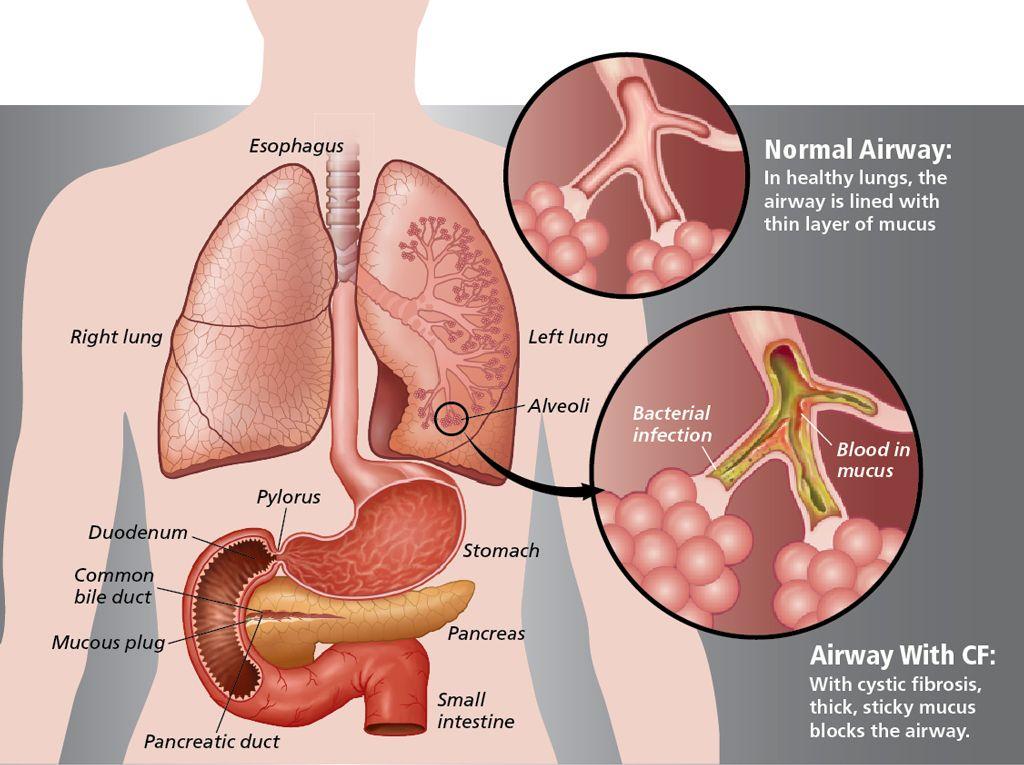 What Is Pulmonary Fibrosis Understanding Cf Pinterest Cystic