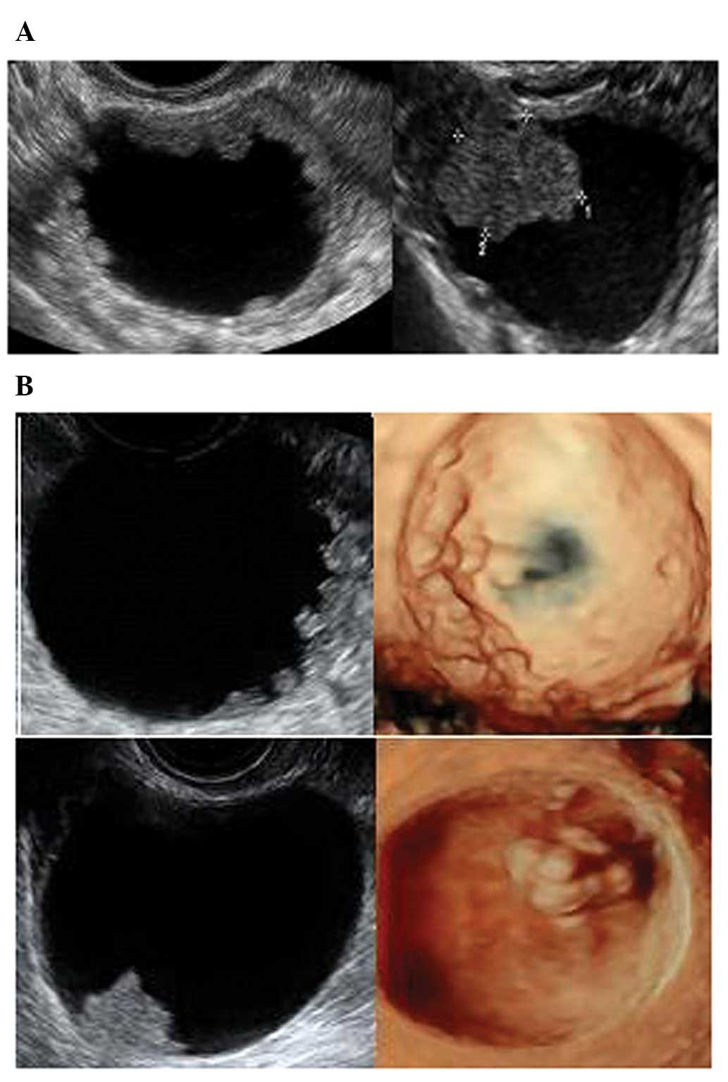 Ovarian Serous Borderline Tumors A Papillary Projection With Irregular Surface B Papillary Project Ovarian Tumor Ultrasound Diagnostic Medical Sonography