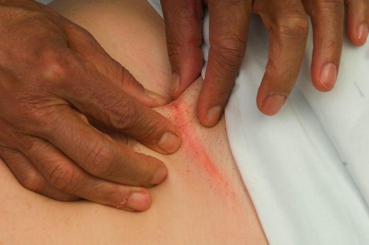 Znalezione obrazy dla zapytania cesarean scar massage