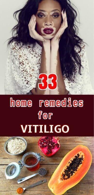 Home remedies to get rid of vitiligo