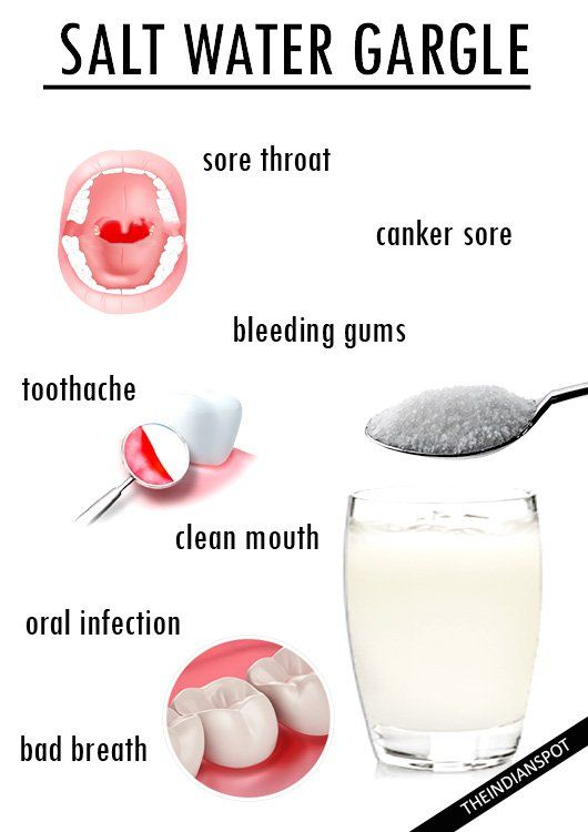 Salt Water Gargle How To And Amazing Benefits Oral Health Care Health Bleeding Gum