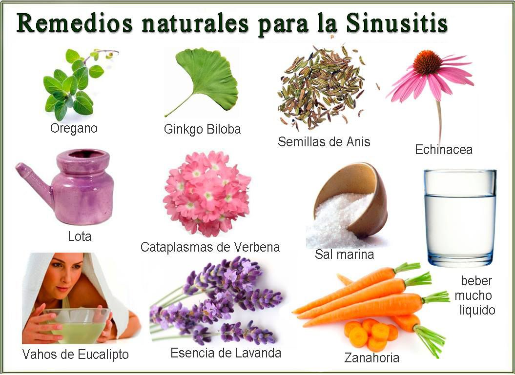 Remedios Naturales Para Tratar La Sinusitis Remedios Naturales Remedios Remedios Caseros