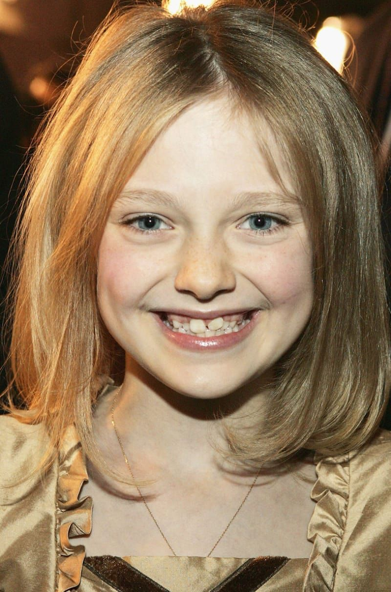 Emma Watson Teeth - 14 Celebrities Who Prove Braces Can
