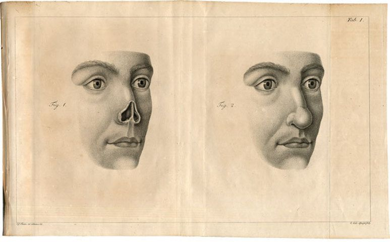 Pin on history of plastic surgery