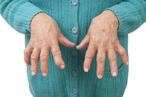 Ce trebuie să știți despre artrita inflamatorie