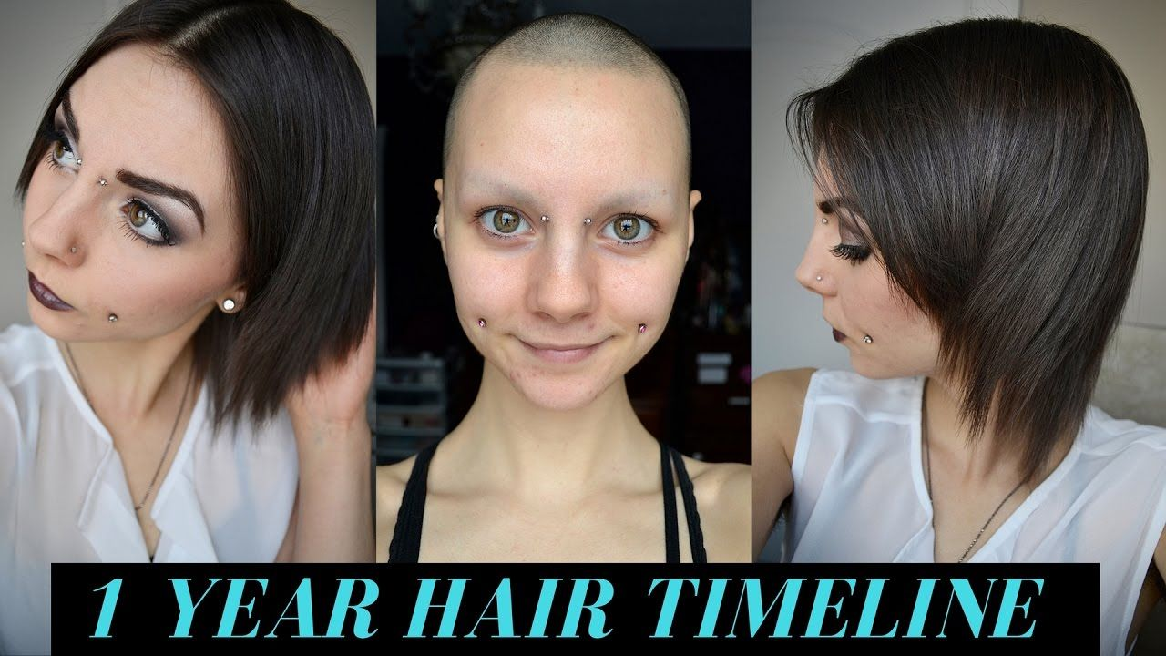1 Year Hair Growth Timeline (Bald & No Eyebrows) YouTube