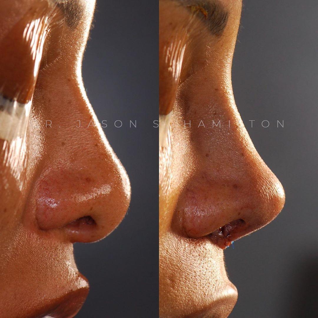 Pin On African American Rhinoplasty Black Nose Jobs