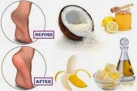 Image result for natural home remedies for face