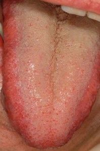 What Causes Dry Mouth And Burning Tongue Syndrome | Medical
