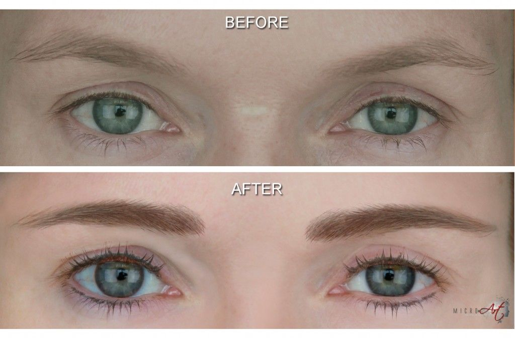 Before After Photos Of Microart Semi Permanent Makeup For Eyebrows Eyeliner An Alternative To Eyebrow Tattooing