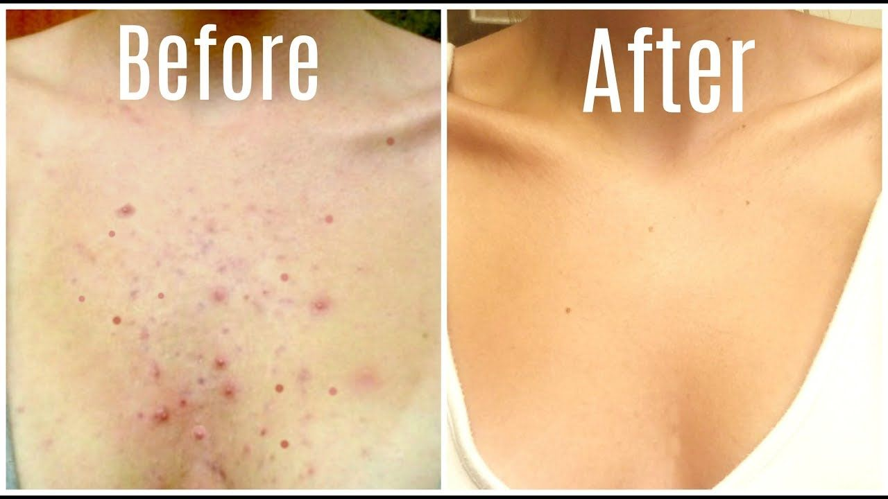 How i got rid of my body acne forever body acne chest