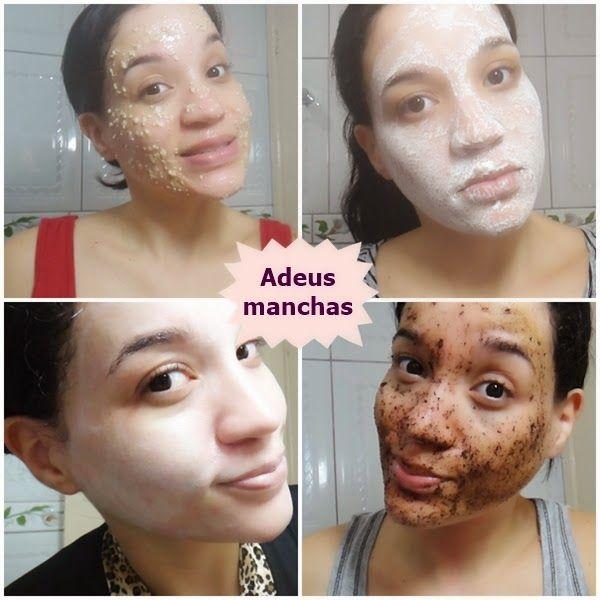 ansiktsbehandling acne