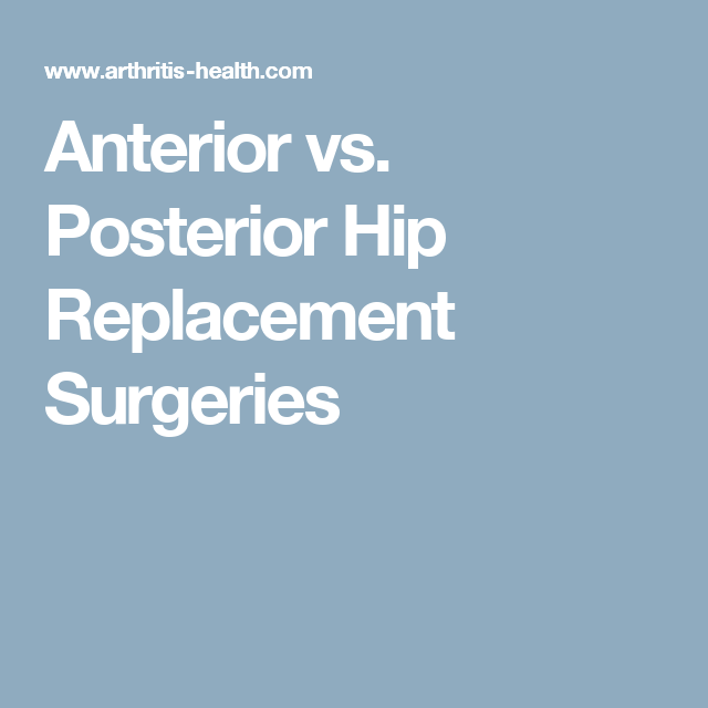 Anterior Vs Posterior Hip Replacement Surgeries Hip Replacement Hip Replacement Exercises Hip Replacement Recovery