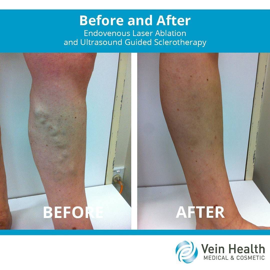 Post sclerotherapy care