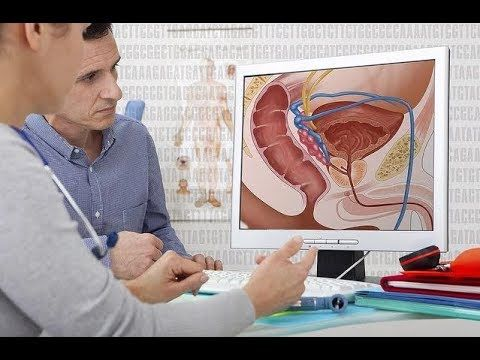 [Video] Treatment for prostate cancer must be carefully planned.