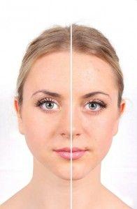 huile de nigelle peau visage
