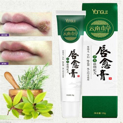 Herbal Cold Sores Lip Repair Anti Lip Wrinkles Dry Chapped
