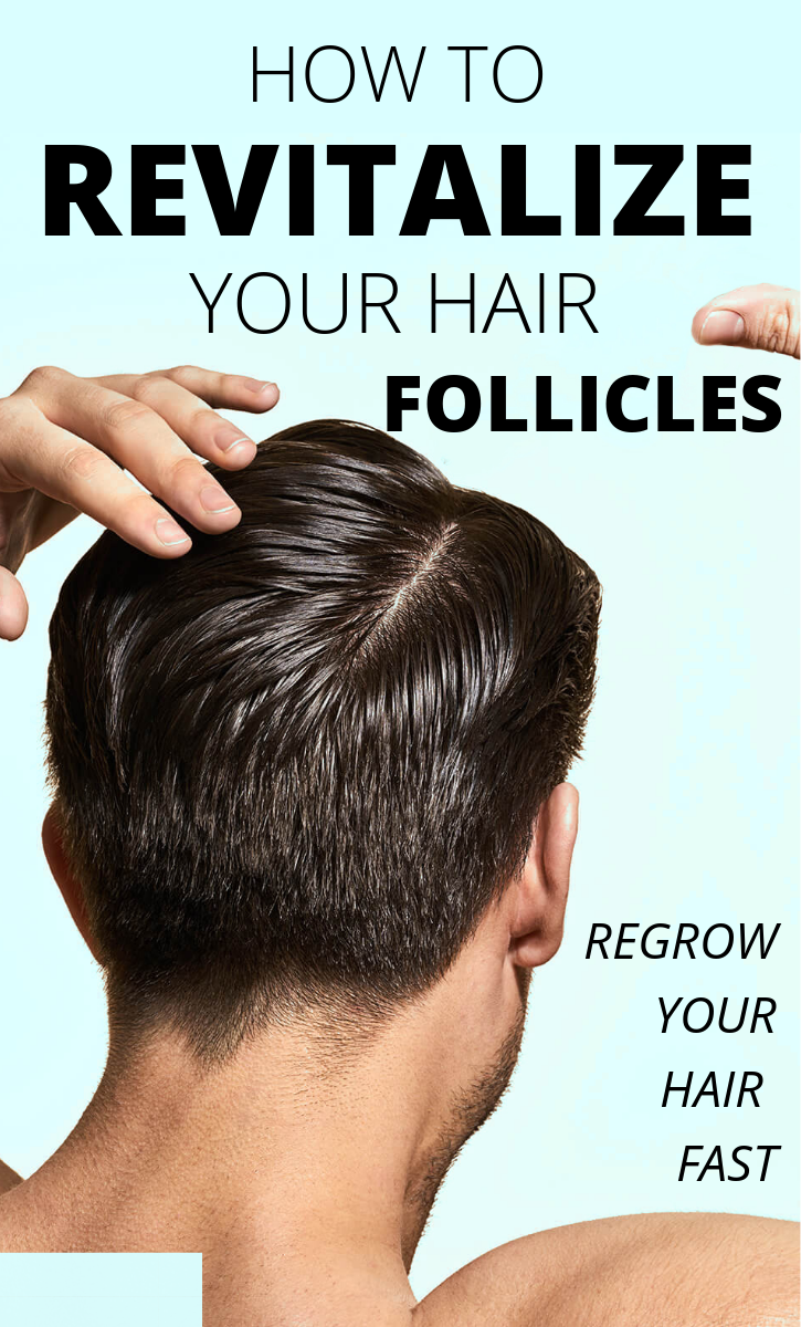 Follically challenged grow your hair naturally  Sirls  Pinterest