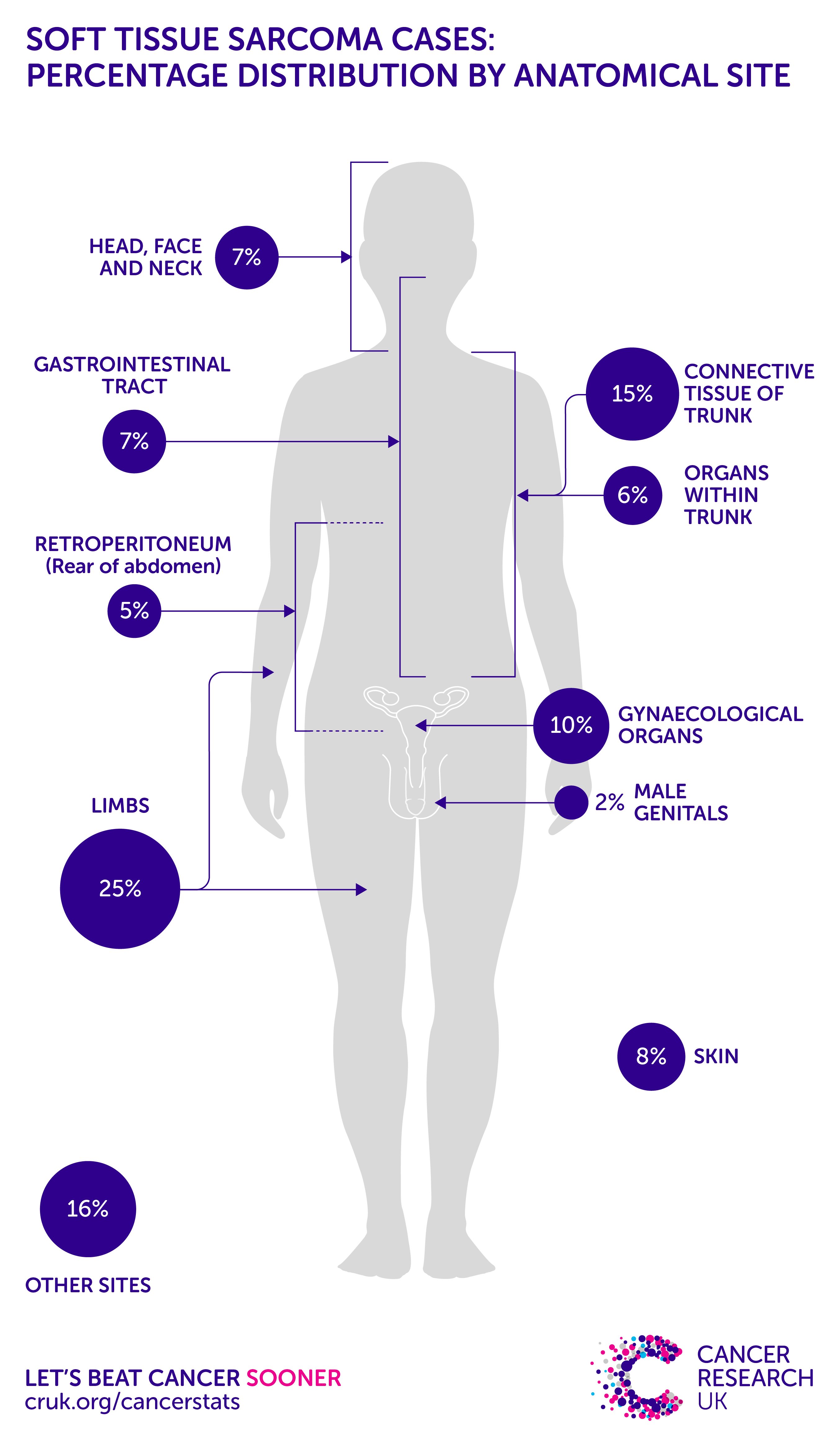 Soft tissue sarcoma incidence statistics | Cancer Research UK