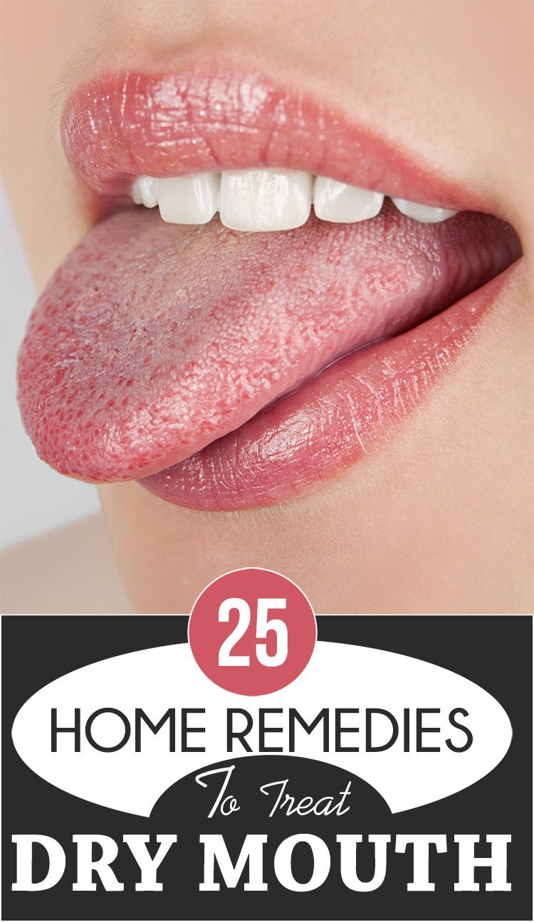 11 causes of dry mouth and simple methods for its removal 91