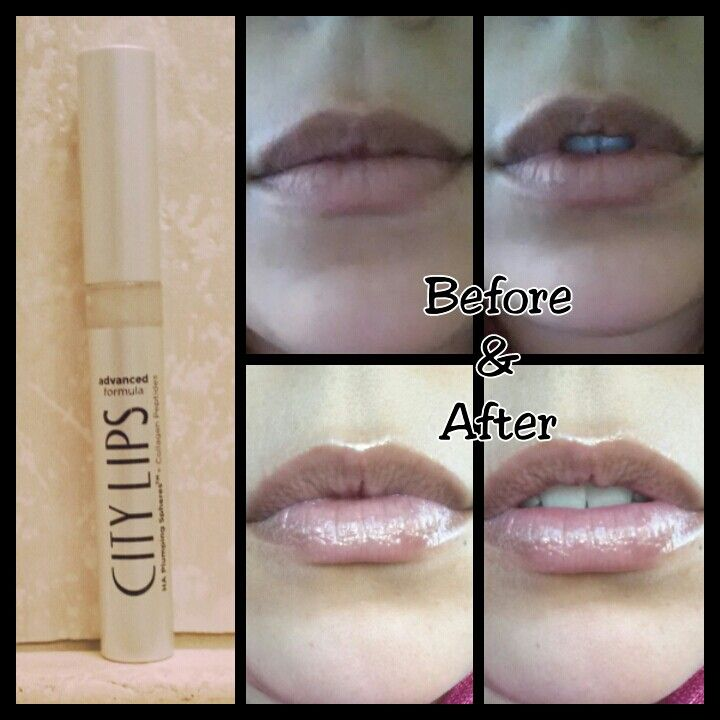 City Lips Before After Photos City Cosmetics City Lips Lip Plumber