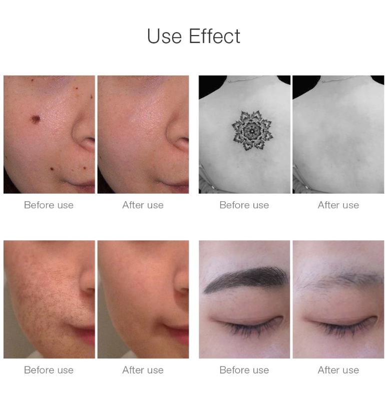 Picosec X Laser Tattoo Removal Upgraded Version (2020) in